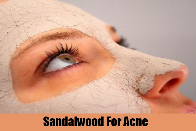 Sandalwood For Acne