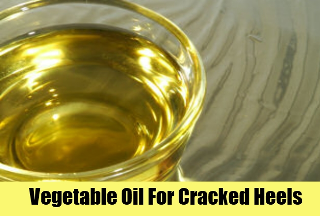 Vegetable Oil For Cracked Heels