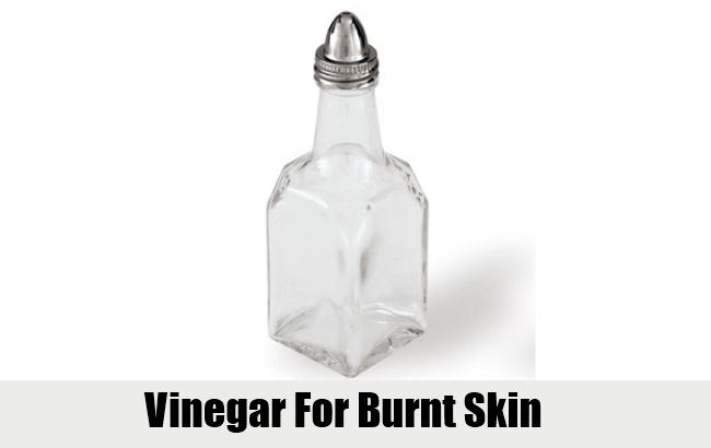 Vinegar For Burnt Skin