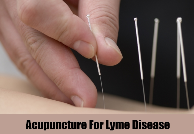 Acupuncture For Lyme Disease