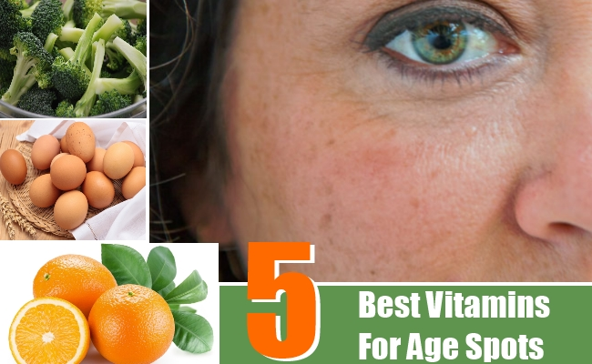 Best Vitamins For Age Spots