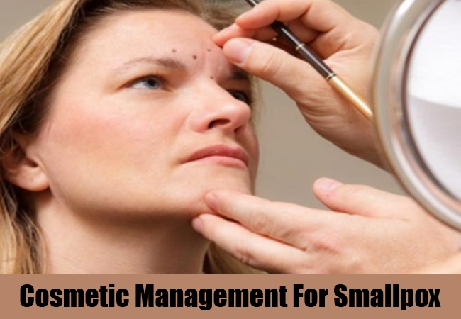 Cosmetic Management For Smallpox