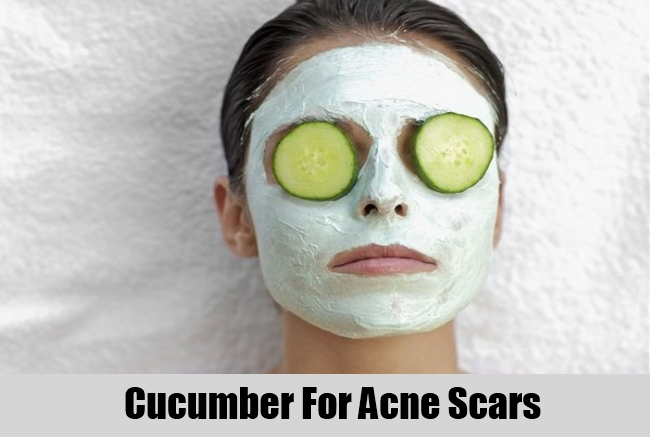 Cucumber For Acne Scars