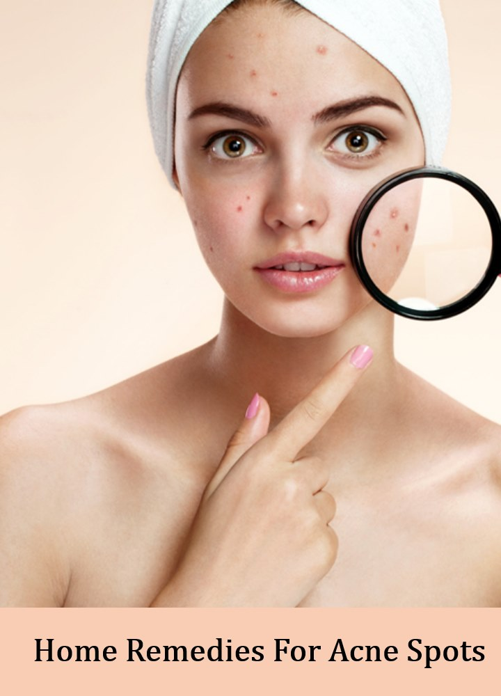 5 Best Home Remedies For Acne Spots