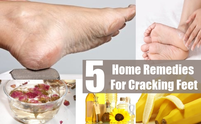 Home Remedies For Cracking Feet