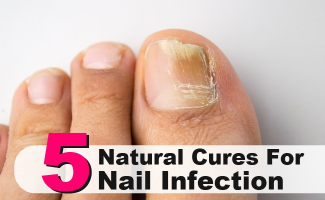 Natural Cures For Nail Infection
