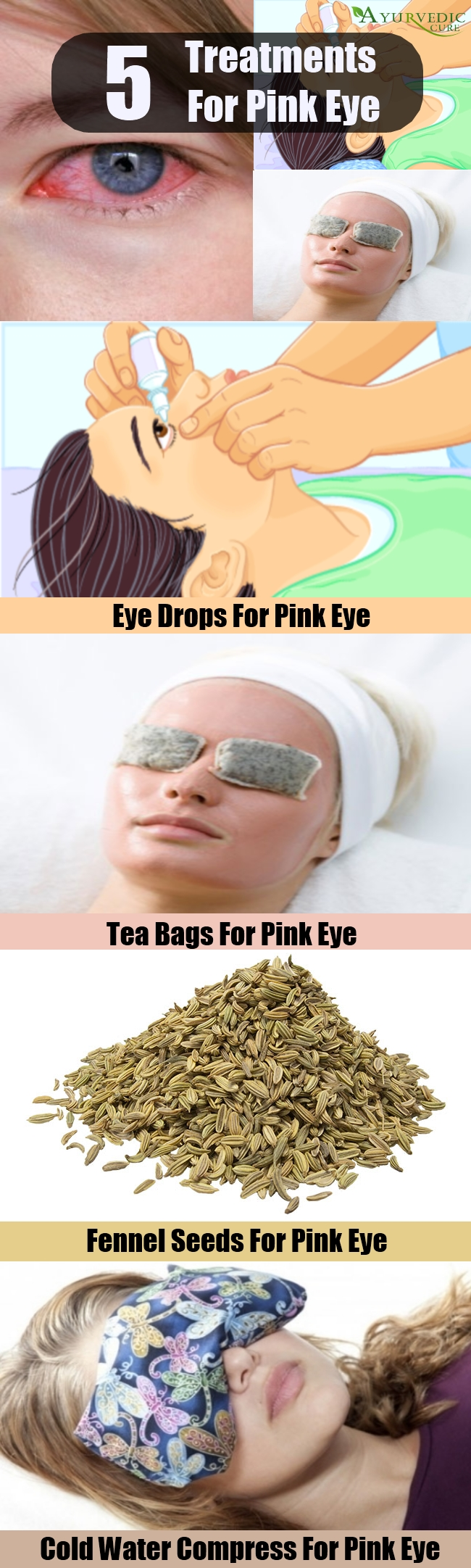 5 Different Treatments For Pink Eye