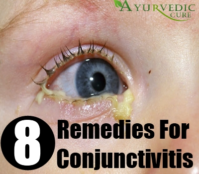8 Ways To Herbal Remedies For Conjunctivitis