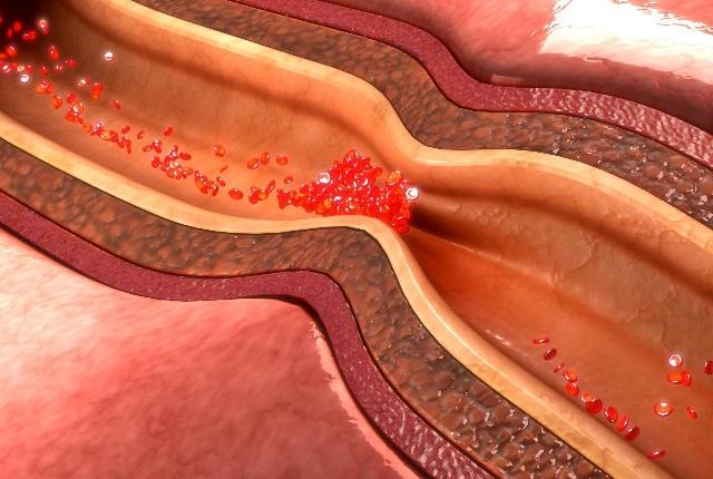 Handles Coronary Artery Disease