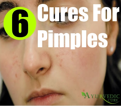 6 cures for pimples