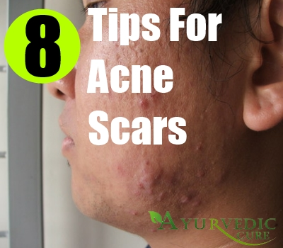 8 Ways To Cure Acne Scars