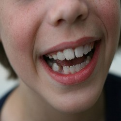 Tooth Decay And Heart Disease