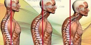 C-Posture