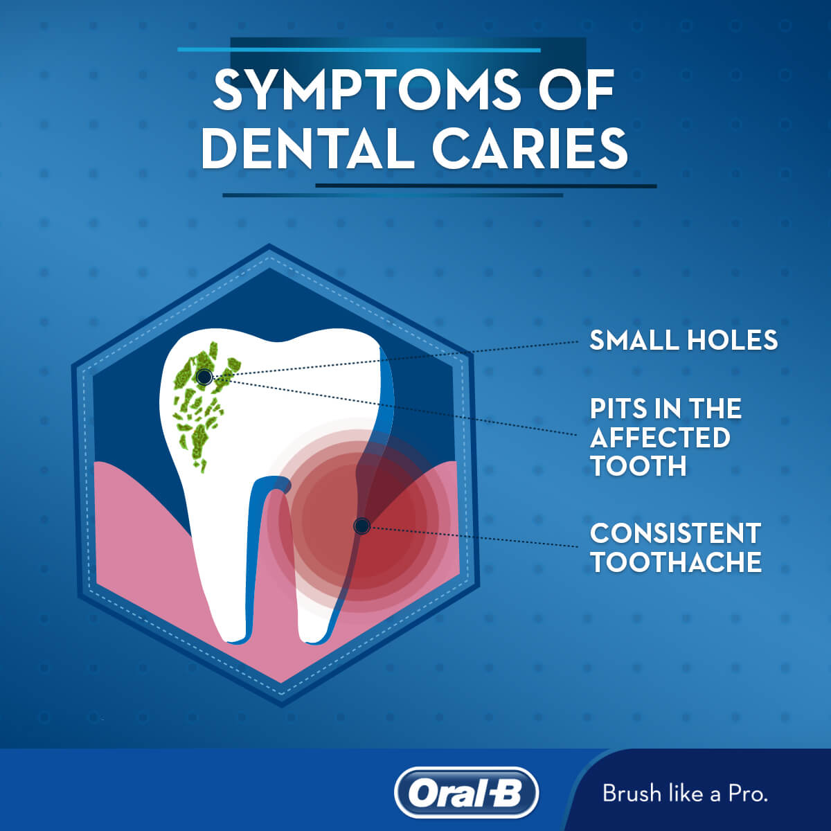 hight resolution of dental caries