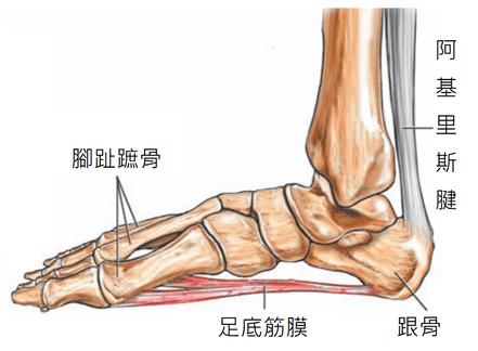 足底筋膜炎竟然不是發炎