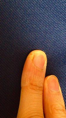 指の化膿治った