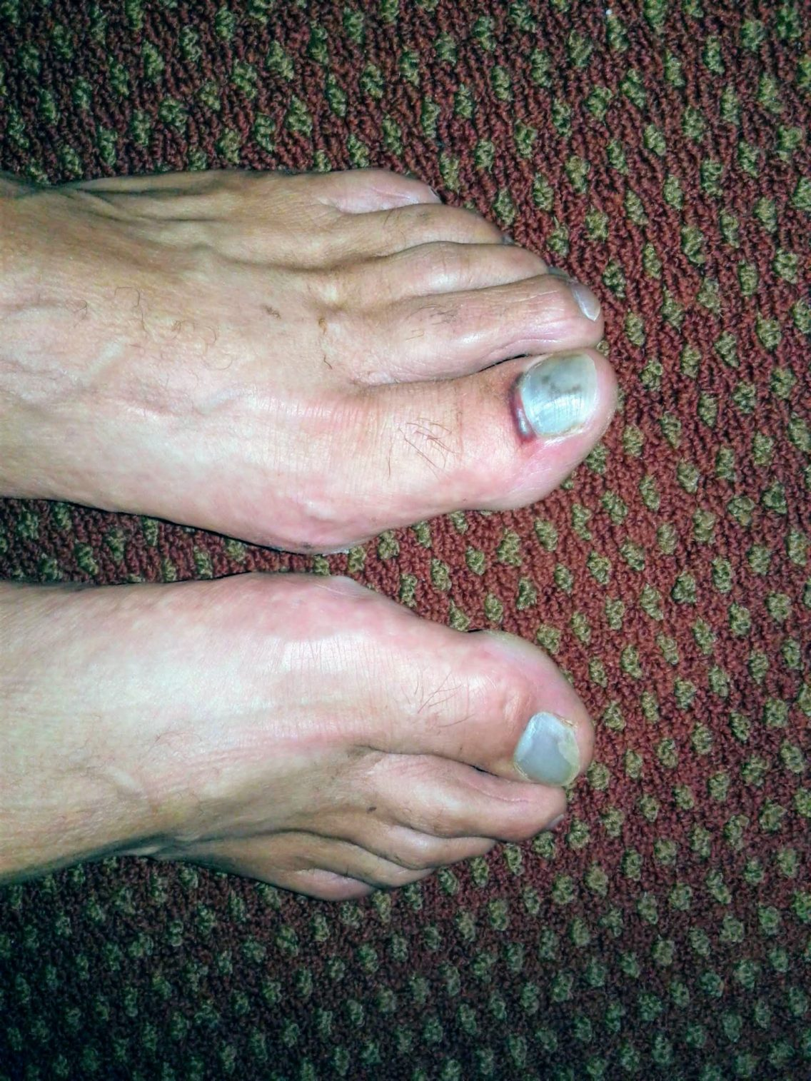 Image of man's feet with bruised toenails on big toes.