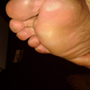 Bottom of human foot with blister in center of ball