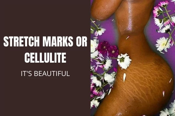 Stretch Marks or Cellulite