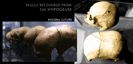 MalDia Skulls found at The Hypogeum