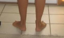 tight peroneals foot pain