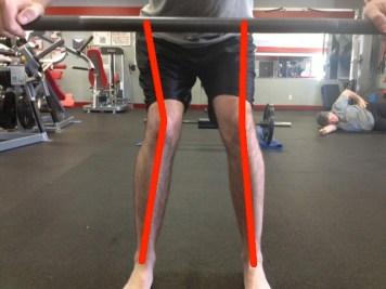 Internally rotated knees versus...