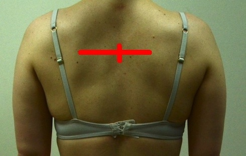 jennifer-back-smaller-with-good-color-scapular-abduction-comparison1 2