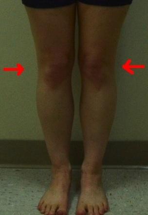 jennifer-front-less-quality-internal-rotation-knees 2