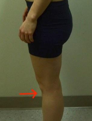 Jennifer knee hyperextension