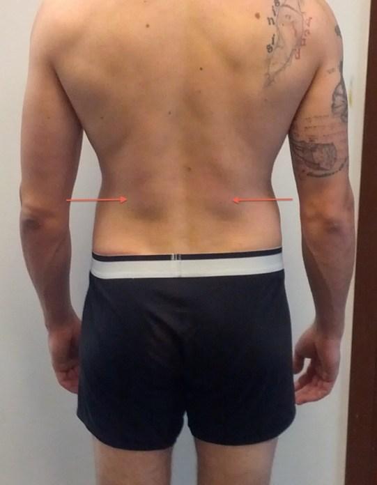jeremy-back-spinal-erectors 2