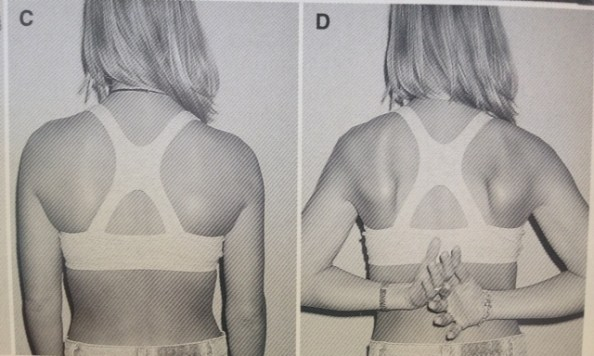 humeral internal rotation winging