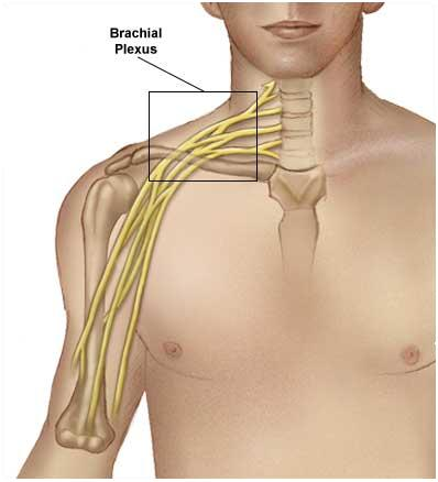 Brachial_Plexus Zoomed out