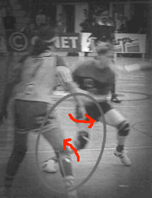 ACL injury knee valgus turning in with rotational lines