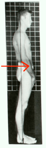 Swayback posture side center of mass pushed forward arrow