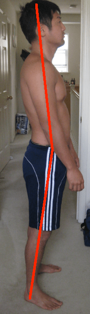 Swayback right side lines center of mass forward