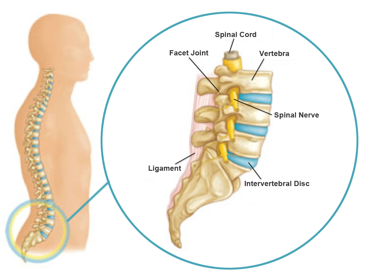 Reversing An Arthritic Spine Degenerative Disc Disease Spinal