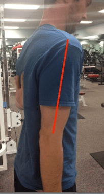 Scapular winging corrected 1 with line