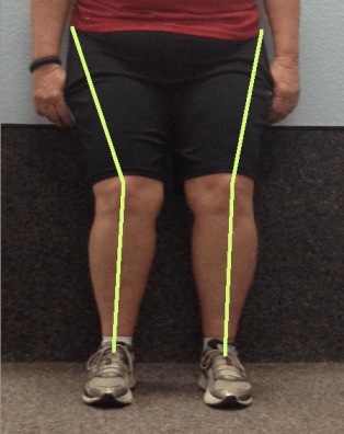 Sharon Knee alignment close up with lines