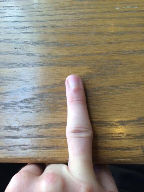 Right ring finger
