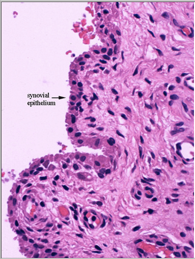 Synovial membrane cellular view