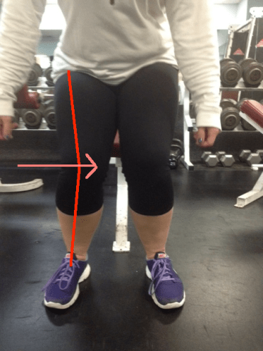Squat knees caving in with medial displacement lines