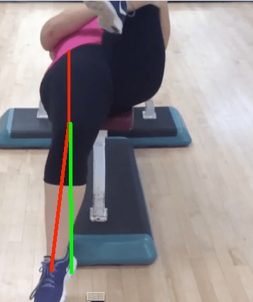 Supine Hip Extension Tibia Laterally Rotated with lines