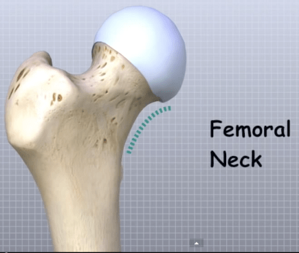 Femoral neck anatomy