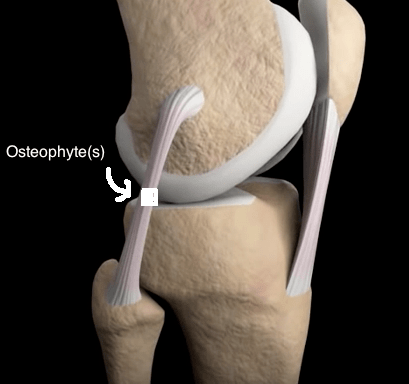 Knee flexion somewhat bent with osteo