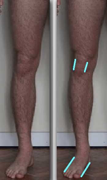 Femur looking laterally rotated but not side by side