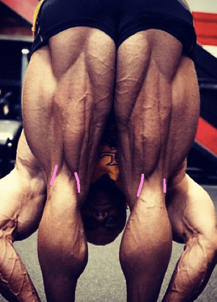 Hamstring insertions bodybuilder with lines
