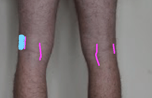 Hamstring insertions close up with lines and left lateral shaded