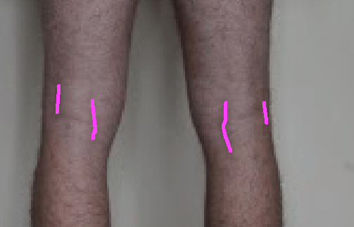 Hamstring insertions close up with lines