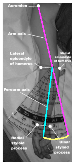 carrying angle 1 with outlines