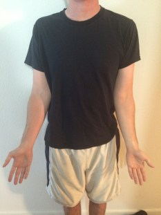 Large carrying angle Cubitus Valgus Throwing Arm Elbow